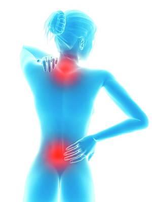Back Pain Photograph - Human Neck And Back Pain by Sebastian Kaulitzki