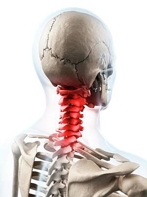 Biomedical Illustration Photograph - Human Neck Pain by Sebastian Kaulitzki