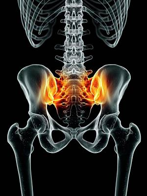 Human Joint Photograph - Human Sacroiliac Joint by Sciepro