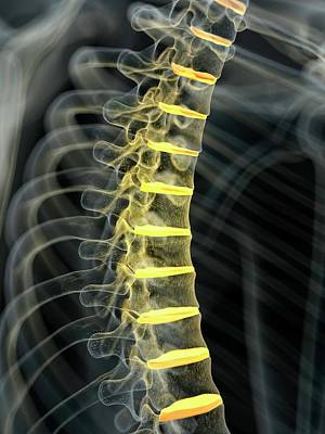 Disc Photograph - Human Spinal Intervertebral Discs by Sciepro