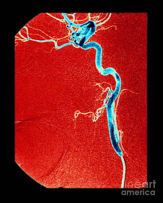 Photograph - Internal Carotid Artery, Angiogram by Living Art Enterprises