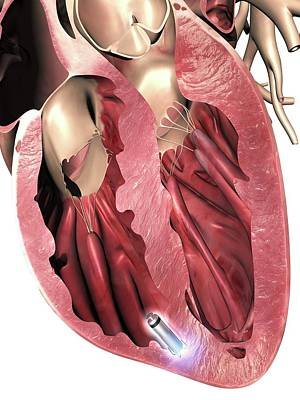 Leadless Pacemaker In Anterior Heart Art Print by Alfred Pasieka
