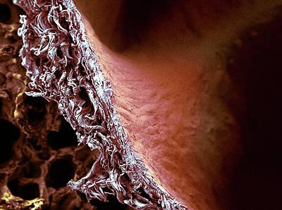 Lung Tissue Art Print by Microscopy Core Facility, Vib Gent
