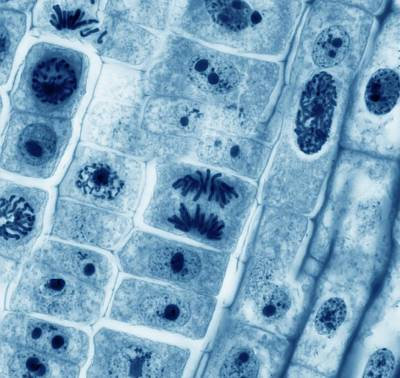 Mitosis Photograph - Mitosis by Steve Gschmeissner