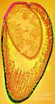 Apophysis Photograph - Moss Spore Capsule, Light Micrograph by Dr. Keith Wheeler