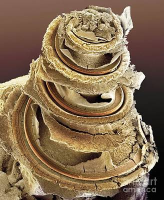 Photograph - Organ Of Corti, Inner Ear, Sem by Dr. David Furness, Keele University