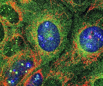Osteosarcoma Cells Print by Nancy Kedersha