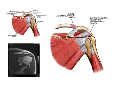 Mri Photograph - Shoulder Tendon Injury by John T. Alesi