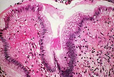 Stomach Ulcer Art Print