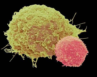 Attaching Photograph - T Lymphocyte And Cancer Cell by Steve Gschmeissner