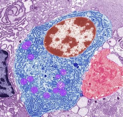 Thyroid Cancer Cell Art Print by Steve Gschmeissner