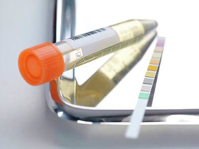 Urine Photograph - Urine Analysis by Tek Image