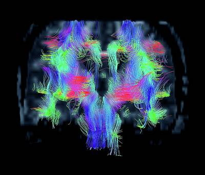 Human Brain Photograph - White Matter Fibres by Zephyr