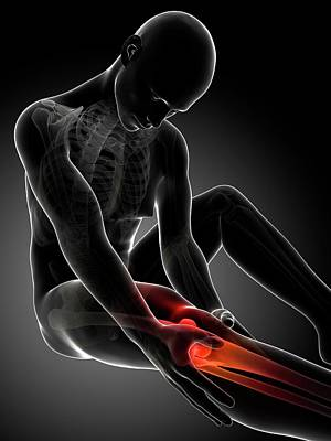 Human Knee Pain Art Print by Sebastian Kaulitzki