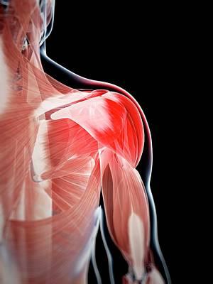 Human Shoulder Pain Art Print by Sebastian Kaulitzki