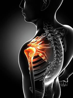 Shoulder Pain Art Print by Sciepro/science Photo Library