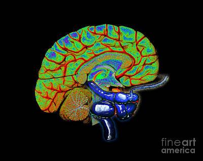 Photograph - 3d Cerebral Angiogram Of Aneurysm by Living Art Enterprises