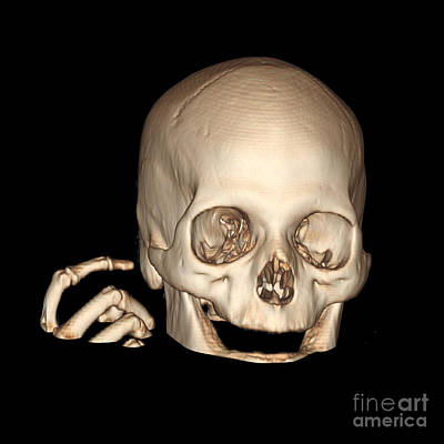 Reconstruction Photograph - 3d Ct Reconstruction Of Head And Hand by Living Art Enterprises
