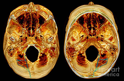 Photograph - 3d Ct Reconstruction Of Skull Fracture by Scott Camazine