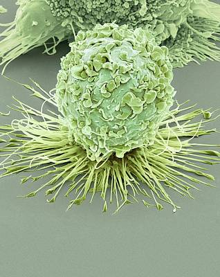 Activated Macrophage Art Print by Steve Gschmeissner