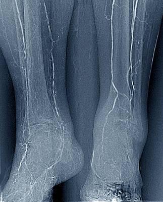 Arteritis In Diabetes Art Print