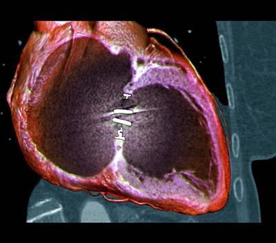 Artificial Heart Valve Art Print by Zephyr