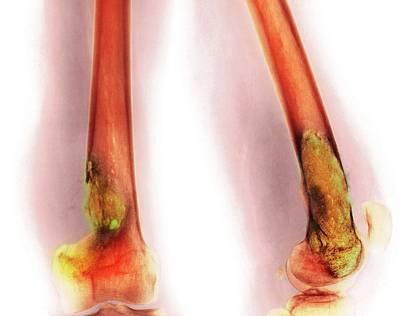 Fibrous Photograph - Bone Tumour by Mike Devlin