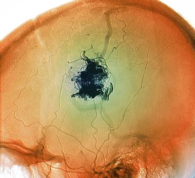 Glues Photograph - Brain Blood Vessel Malformation by Zephyr