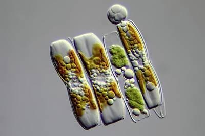 Diatoms Art Print