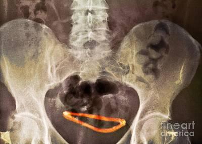 Hydrocephalus Photograph - Ectopic Hydrocephalic Shunt, X-ray by Du Cane Medical Imaging Ltd.