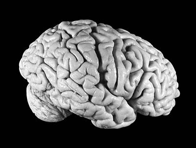Einstein's Brain Art Print by Otis Historical Archives, National Museum Of Health And Medicine
