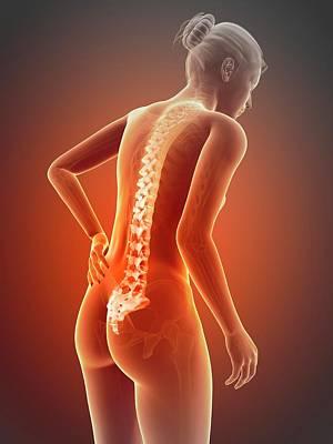 Biomedical Illustration Photograph - Human Back Pain by Sebastian Kaulitzki