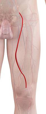 Human Leg Artery Art Print by Sciepro