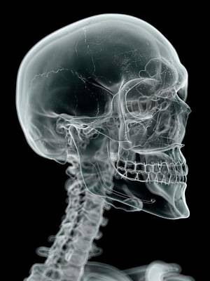 Human Head Photograph - Human Skull And Neck by Sciepro