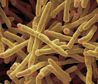 Mycobacterium Smegmatis Bacteria Art Print by Steve Gschmeissner