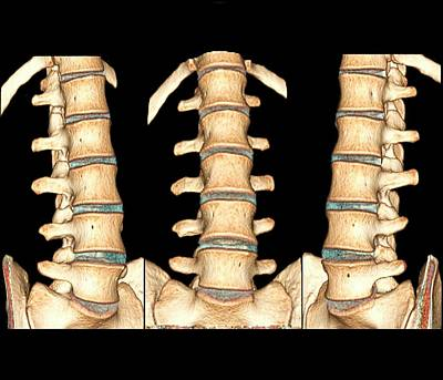 Disc Photograph - Normal Spine by Zephyr