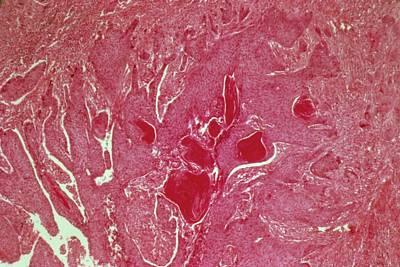 Oesophageal Cancer Art Print