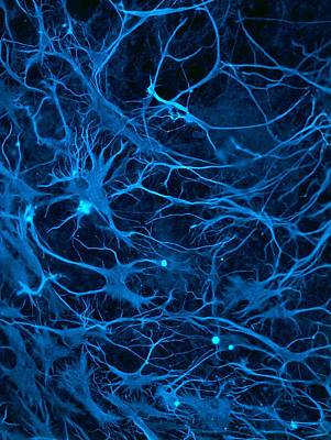 Microscopes Photograph - Stem Cell-derived Nerve Cells by Science Photo Library