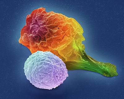 T Lymphocyte And Cancer Cell Art Print by Steve Gschmeissner