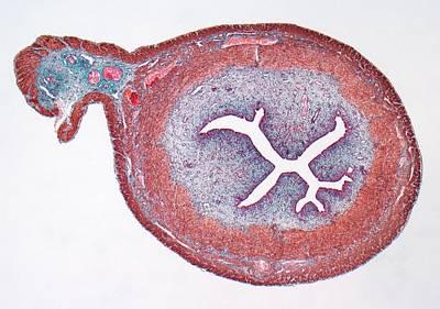 Uterus Print by Steve Gschmeissner