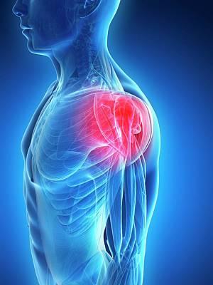 Human Shoulder Pain Art Print