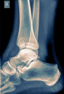 Ankle X-ray Art Print by Photostock-israel