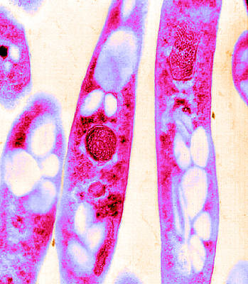 Occur Photograph - Anthrax, Bacillus Anthracis Bacteria by Science Source