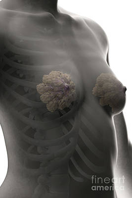 Breast Augmentation Photograph - Breast Tissue by Science Picture Co
