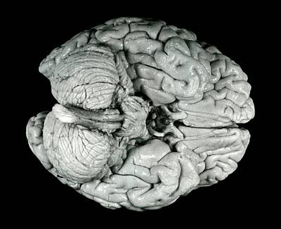 Einstein Photograph - Einstein's Brain by Otis Historical Archives, National Museum Of Health And Medicine