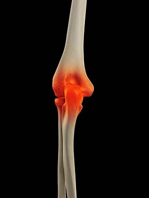 Human Joint Photograph - Human Elbow Joint by Sciepro