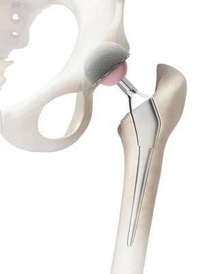 Human Hip Replacement Art Print by Sebastian Kaulitzki