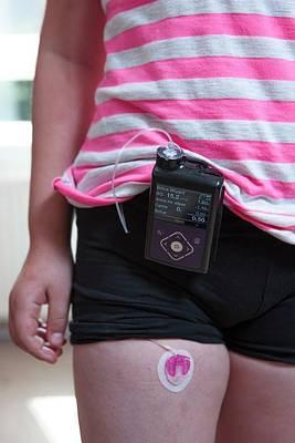 Insulin Wall Art - Photograph - Insulin Pump Use In Diabetes by Lewis Houghton/science Photo Library