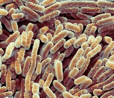 Fermentation Photograph - Lactobacillus Bacteria by Steve Gschmeissner