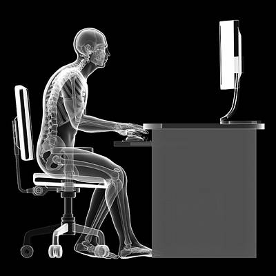 Person Sitting With Incorrect Posture Art Print by Sebastian Kaulitzki